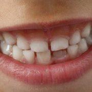 Toutes ses dents